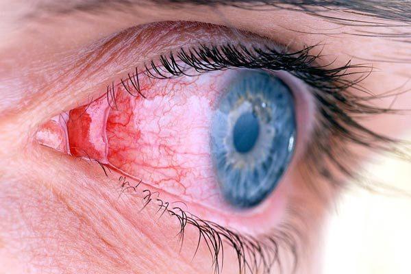 عارضه چشم، نشانه ویروس کروناست