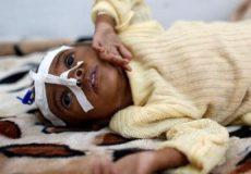 تعداد کودکان یمنی گرفتار سوءتغذیه به۲میلیون و ۴۰۰ هزار نفر میرسد