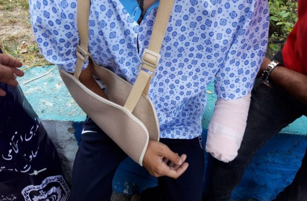 قطع دست جوان ۱۸ ساله در حمله اوباش