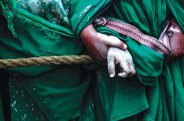 زین العابدین؛ پرستار مردمی بیمار